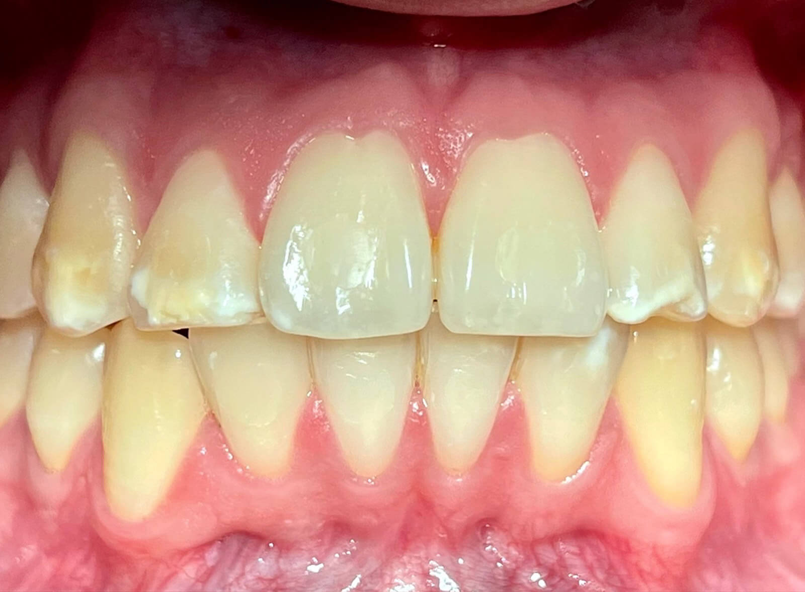 blanqueamiento-dental-smile-crafters-before