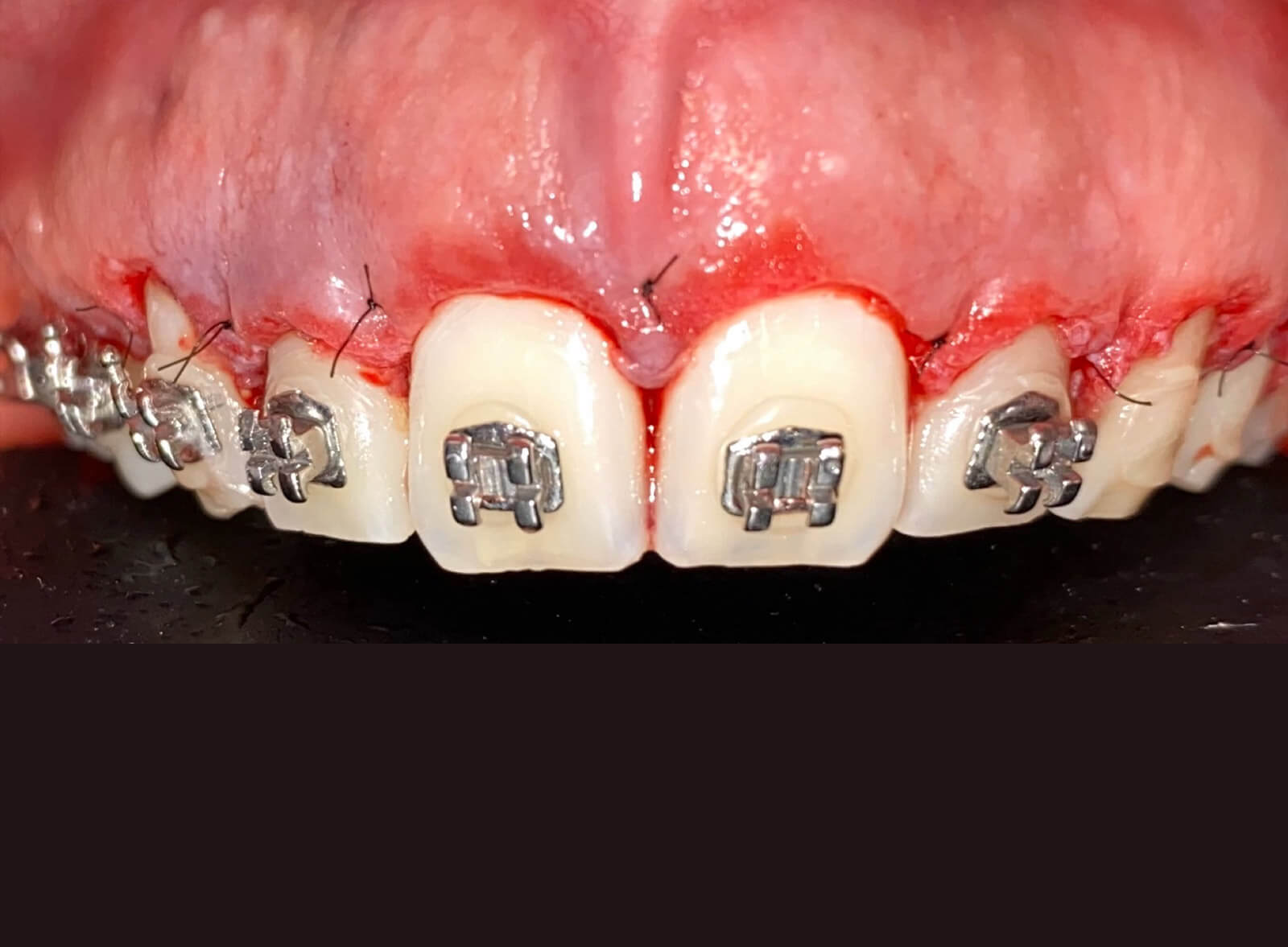 cirugia-dental-smile-crafters-after